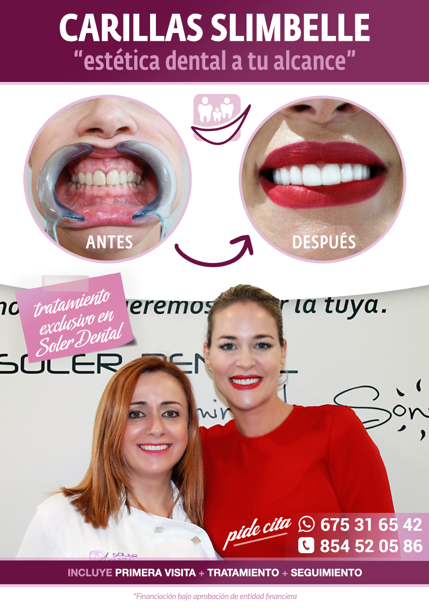 Las láminas SlimBelle solo en Soler Dental