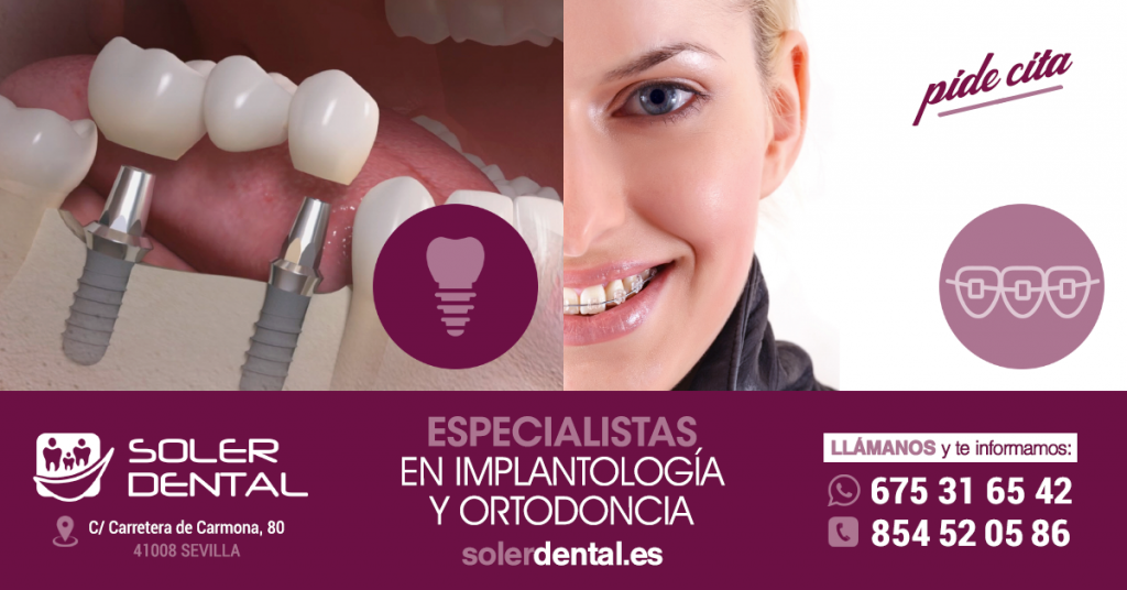 Implantología y Ortodoncia