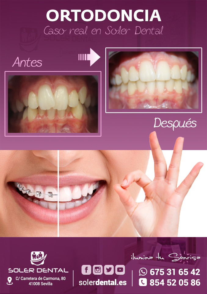Caso real de ortodoncia
