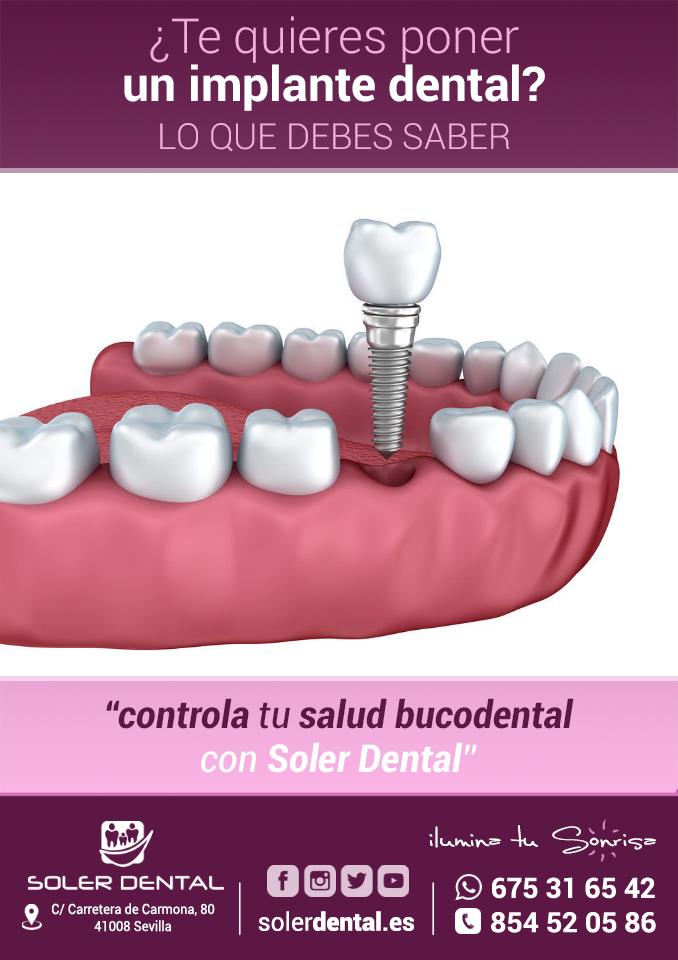 ¿Te quieres poner un implante dental?