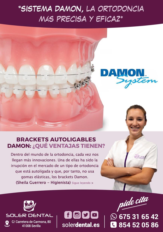 Sistema Damon, la ortodoncia más precisa y eficaz