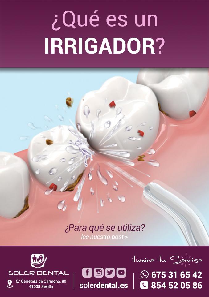¿Qué es un IRRIGADOR bucal? ¿Para qué se utiliza?